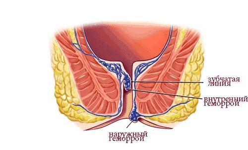 Лечение внутреннего геморроя у мужчин