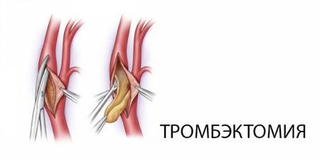 Тромбоз геморроидального узла операция
